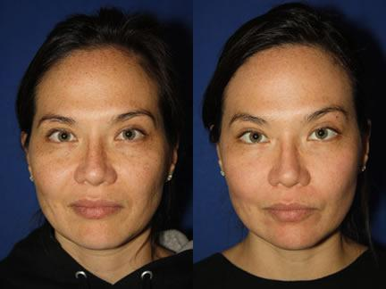 patient-12678-laser-treatments-before-after