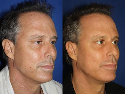 patient-12683-laser-treatments-before-after
