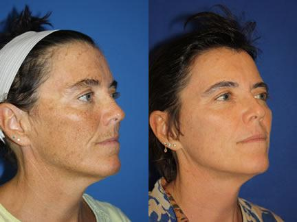 patient-12686-laser-treatments-before-after-1-2