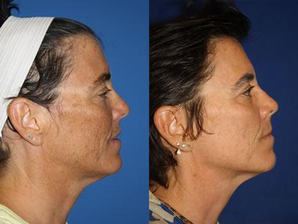 patient-12686-laser-treatments-before-after-2