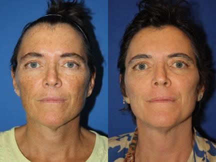 patient-12686-laser-treatments-before-after
