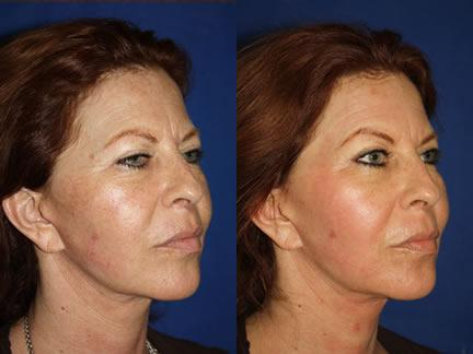 patient-12693-laser-treatments-before-after-1-2