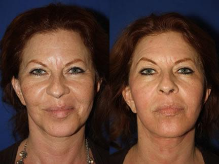 patient-12693-laser-treatments-before-after