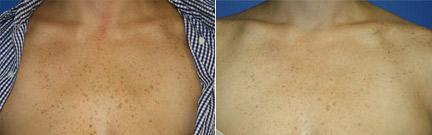patient-12698-laser-treatments-before-after-1