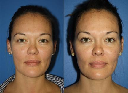 patient-12698-laser-treatments-before-after