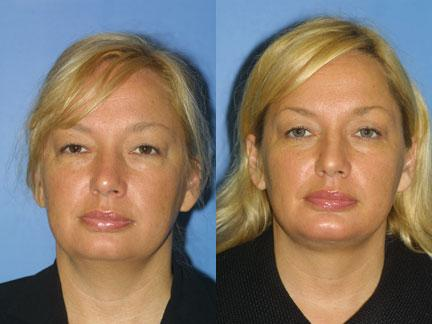 patient-12703-neck-lift-before-after