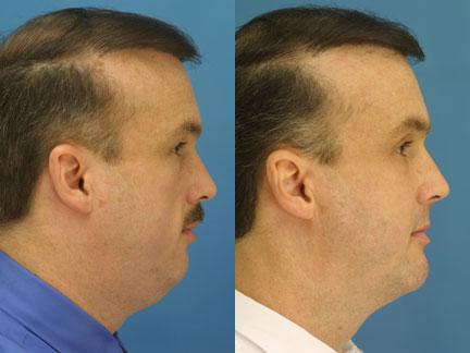 patient-12717-neck-liposuction-before-after-3