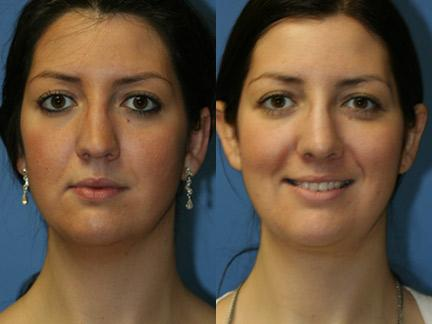 patient-12727-neck-liposuction-before-after-2