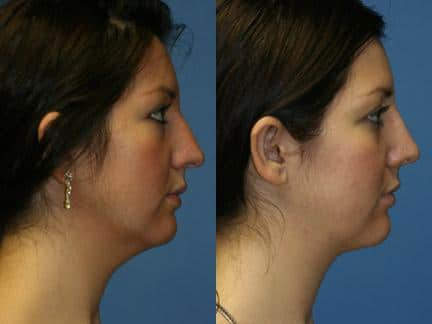 patient-12727-neck-liposuction-before-after-3