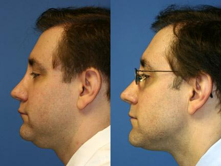 patient-12732-neck-liposuction-before-after-1