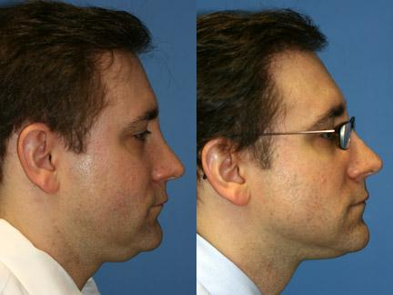 patient-12732-neck-liposuction-before-after
