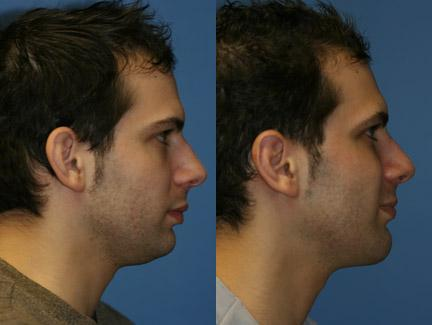 patient-12737-neck-liposuction-before-after-4