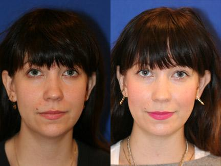 patient-12751-neck-liposuction-before-after