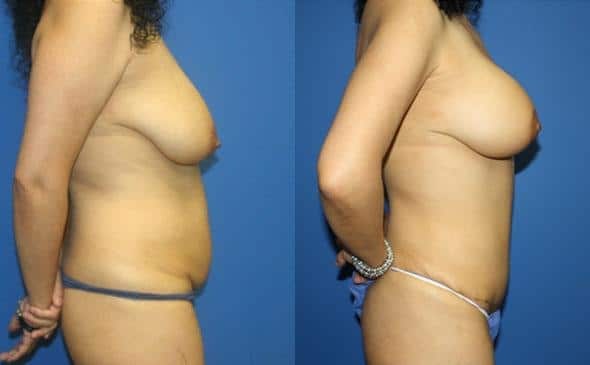 patient-12756-body-makeover-before-after-2