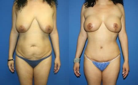 patient-12756-body-makeover-before-after