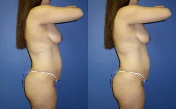 patient-12763-body-makeover-before-after-2