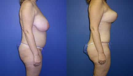 patient-12770-body-makeover-before-after-1