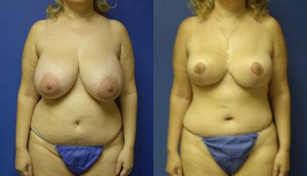 patient-12770-body-makeover-before-after