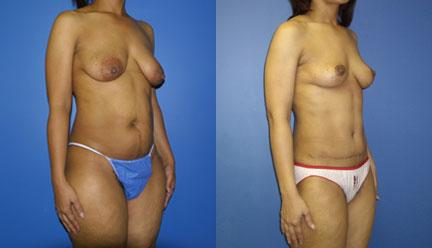 patient-12775-body-makeover-before-after-1