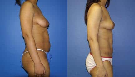 patient-12775-body-makeover-before-after-3