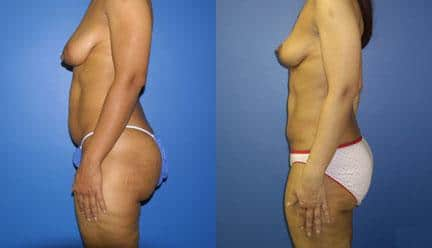 patient-12775-body-makeover-before-after-4