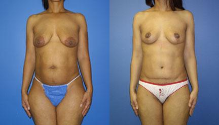patient-12775-body-makeover-before-after