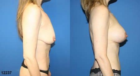 patient-12786-body-makeover-before-after-1