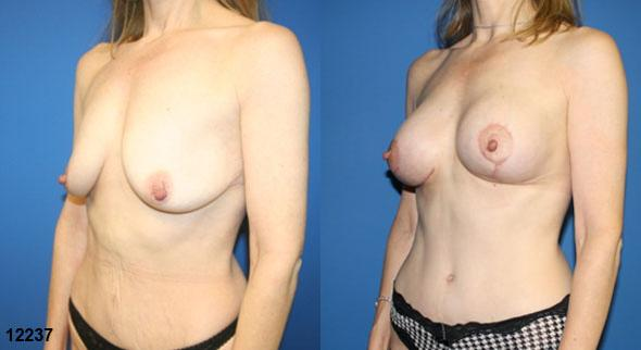 patient-12786-body-makeover-before-after-2