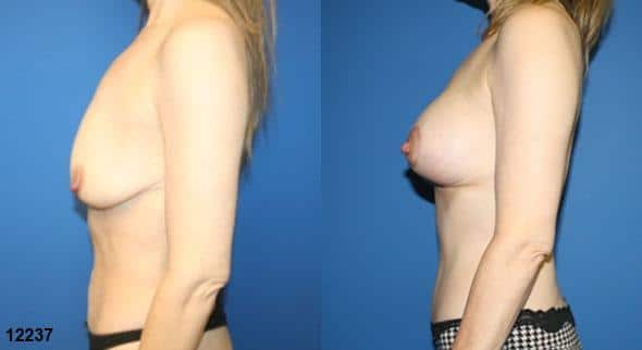 patient-12786-body-makeover-before-after-3