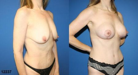 patient-12786-body-makeover-before-after