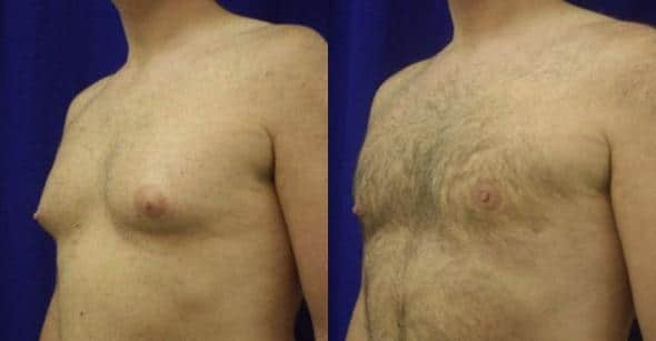patient-12795-gynecomasty-male-pectoral-before-after-1