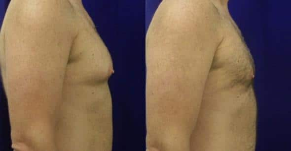 patient-12795-gynecomasty-male-pectoral-before-after-2