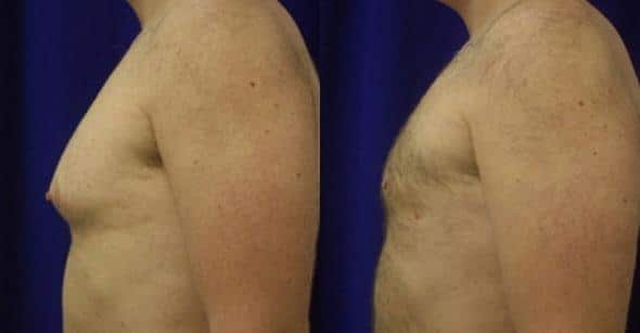 patient-12795-gynecomasty-male-pectoral-before-after-3