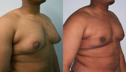 patient-12804-gynecomasty-male-pectoral-before-after-1