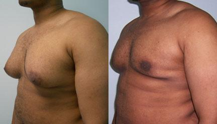patient-12804-gynecomasty-male-pectoral-before-after-2
