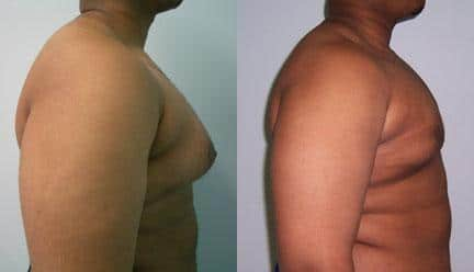 patient-12804-gynecomasty-male-pectoral-before-after-3