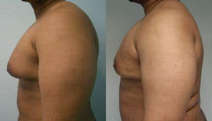 patient-12804-gynecomasty-male-pectoral-before-after-4