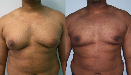 patient-12804-gynecomasty-male-pectoral-before-after