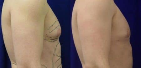 patient-12815-gynecomasty-male-pectoral-before-after-1