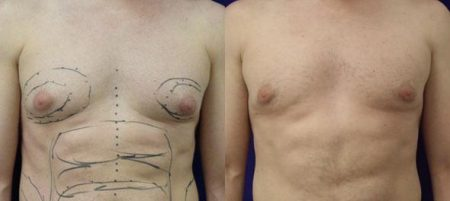 patient-12815-gynecomasty-male-pectoral-before-after