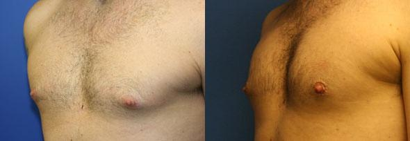 patient-12820-gynecomasty-male-pectoral-before-after-1