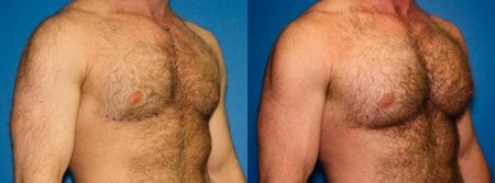 patient-12825-gynecomasty-male-pectoral-before-after-1