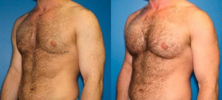 patient-12825-gynecomasty-male-pectoral-before-after-2