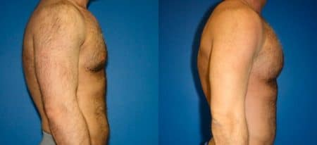 patient-12825-gynecomasty-male-pectoral-before-after-4