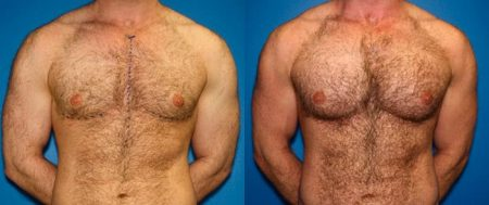 patient-12825-gynecomasty-male-pectoral-before-after