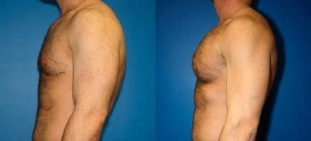 patient-12825-gynecomasty-male-pectoral-before-after-5