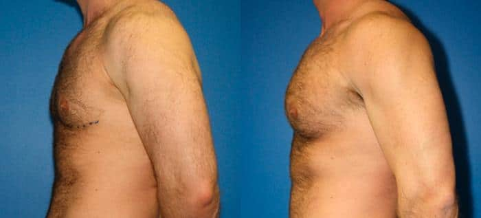 patient-12825-gynecomasty-male-pectoral-before-after-6
