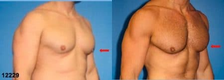 patient-12840-gynecomasty-male-pectoral-before-after-1
