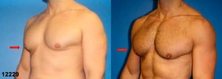 patient-12840-gynecomasty-male-pectoral-before-after-2