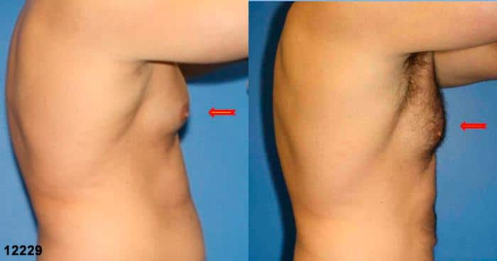 patient-12840-gynecomasty-male-pectoral-before-after-3